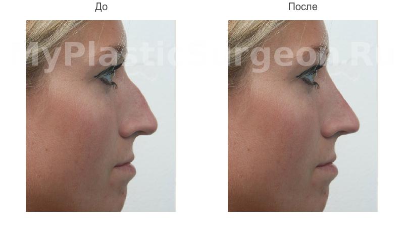 Программу для моделирования носа ринопластика