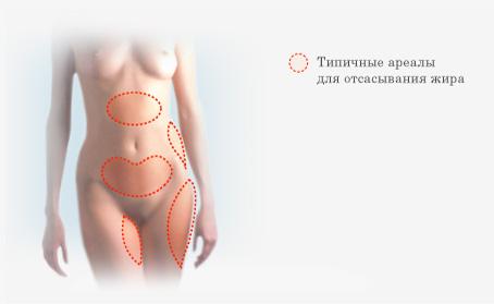 удаление жира с живота у женщин видео