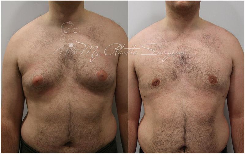 увеличение груди в белгороде