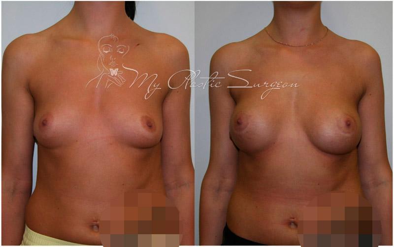 увеличение груди клиники новосибирска