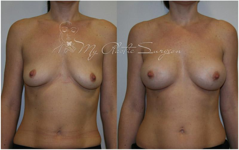Биогель увеличения груди до и после