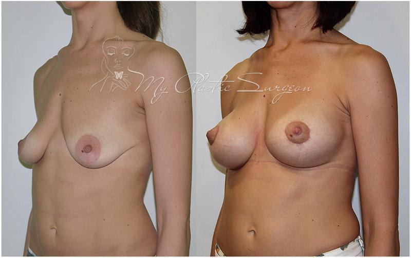 39 неделя грудь стала меньше