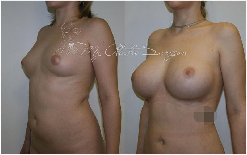 Япония увеличение груди