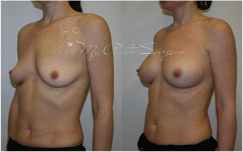 Сколько стоит увеличить на первый размер груди
